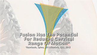 Fusion has the potential for reduced cervical range of motion